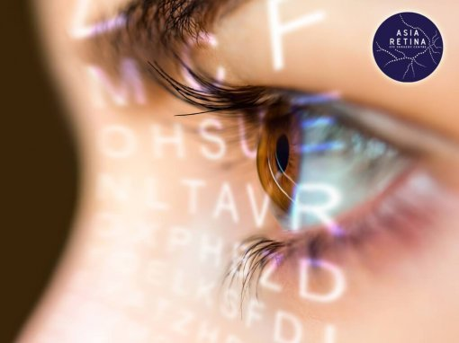 What is Glaucoma: Causes, Symptoms, Treatment