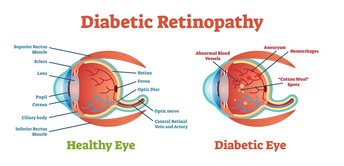 Diabetic Retinopathy illustration