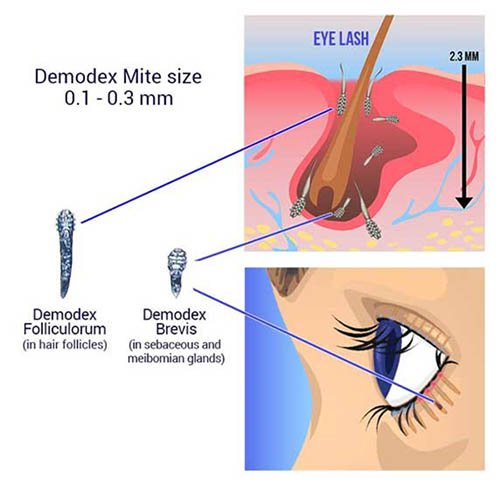 Demodex blepharitis