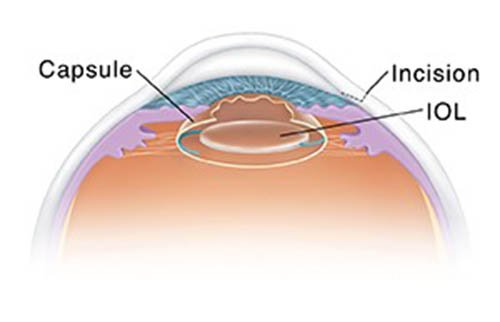 """After-cataract"" or Posterior Capsule Opacification"