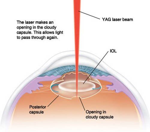 YAG laser makes